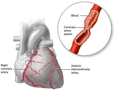 obat herbal atasi jantung koroner
